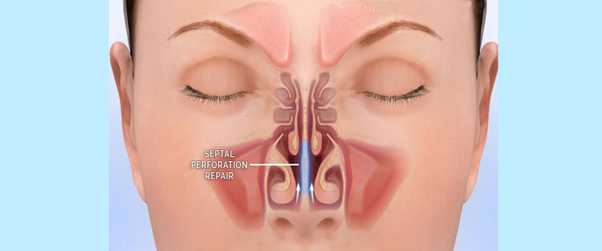 Nasal Septum Basic Anatomy